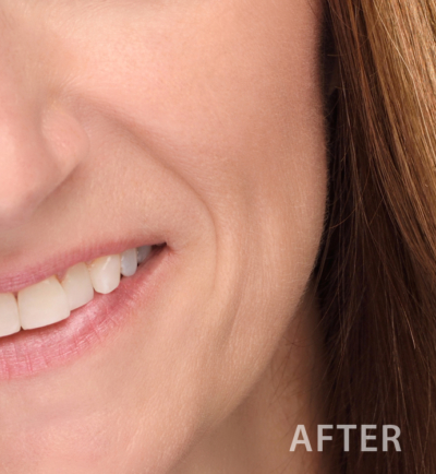 Sample Facial Skin After Retouching