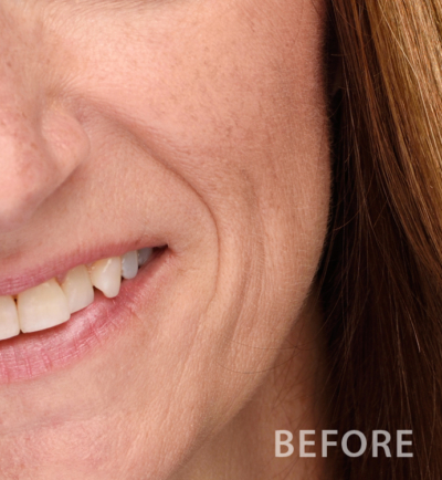 Sample Facial Skin Before Retouching
